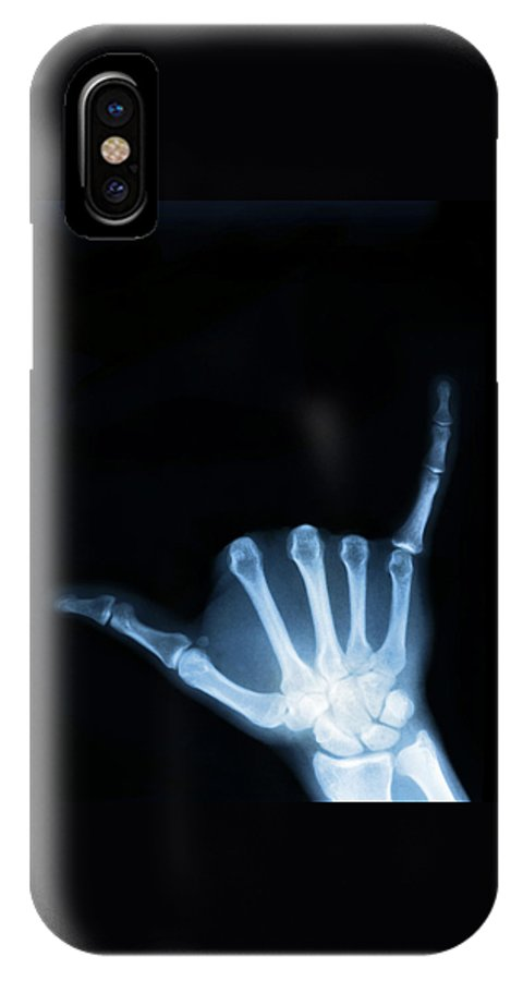 X-ray IPhone X Case featuring the photograph Hang Loose by Gravityx9 Designs