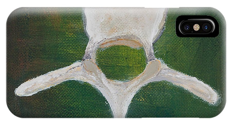 Chiropractic IPhone X / XS Case featuring the painting Thoracic V. by Sara Young