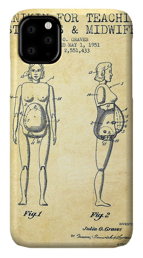 Midwife IPhone Case featuring the drawing Manikin For Teaching Obstetrics And Midwifery Patent From 1951 - by Aged Pixel