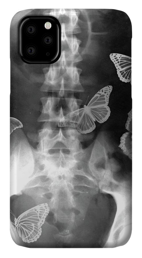 Abdomen IPhone Case featuring the photograph Butterflies In The Stomach by Photostock-israel
