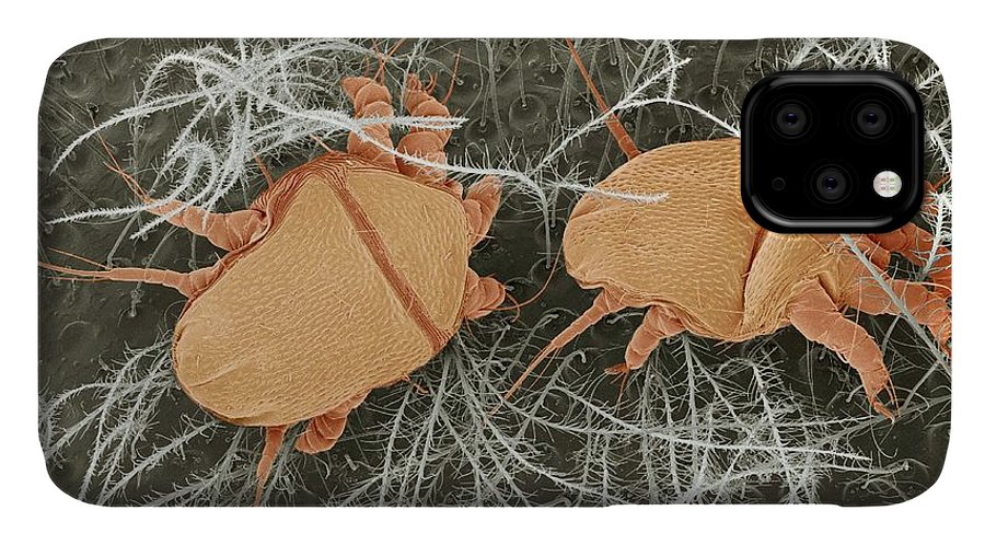 Bee Mite IPhone Case featuring the photograph Honey Bee Mites, Sem by Steve Gschmeissner
