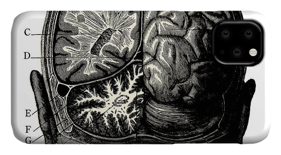 Engraving IPhone Case featuring the digital art Humain Brain -vintage Engraved by Lynea