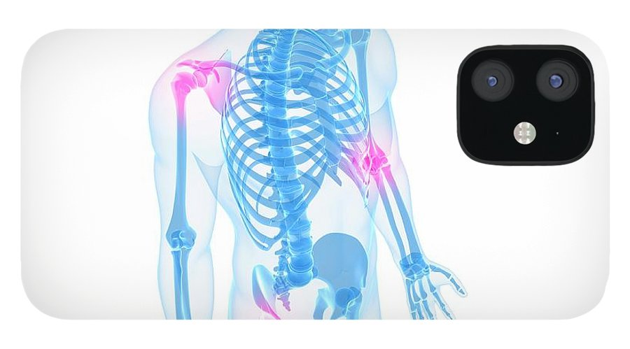 White Background IPhone 12 Case featuring the digital art Joint Pain, Conceptual Artwork by Sciepro