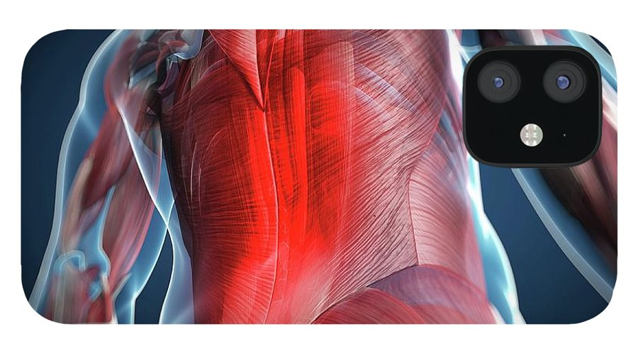 Physiology IPhone 12 Case featuring the digital art Back Pain, Conceptual Artwork by Science Photo Library - Sciepro