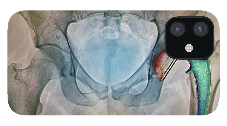 Artificial IPhone 12 Case featuring the photograph Dislocated Hip Replacement, X-ray by Zephyr