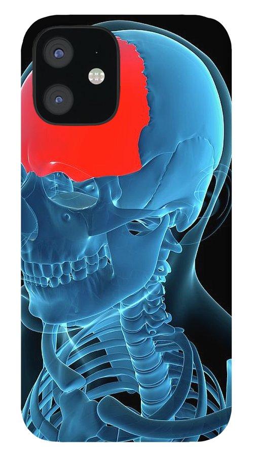Anatomy IPhone 12 Case featuring the digital art Frontal Bone, Artwork by Sciepro