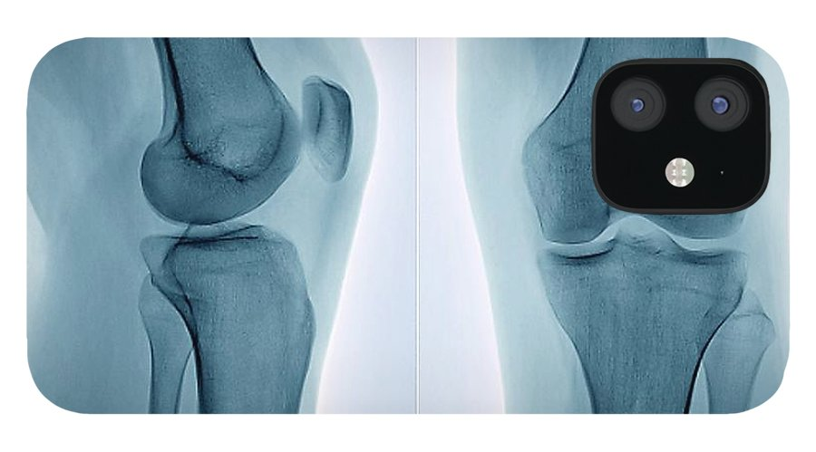 White Background IPhone 12 Case featuring the photograph Healthy Knee, X-ray by Zephyr