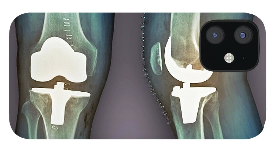 Artificial IPhone 12 Case featuring the photograph Total Knee Replacement, X-rays by Zephyr