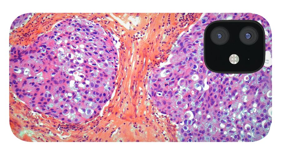 Anatomy IPhone 12 Case featuring the digital art Breast Cancer, Light Micrograph by Steve Gschmeissner