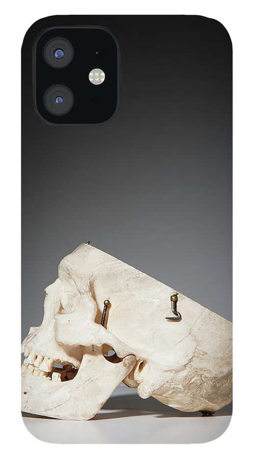 Sweden IPhone 12 Case featuring the photograph Anatomical Model Of Human Skull by Johner Images