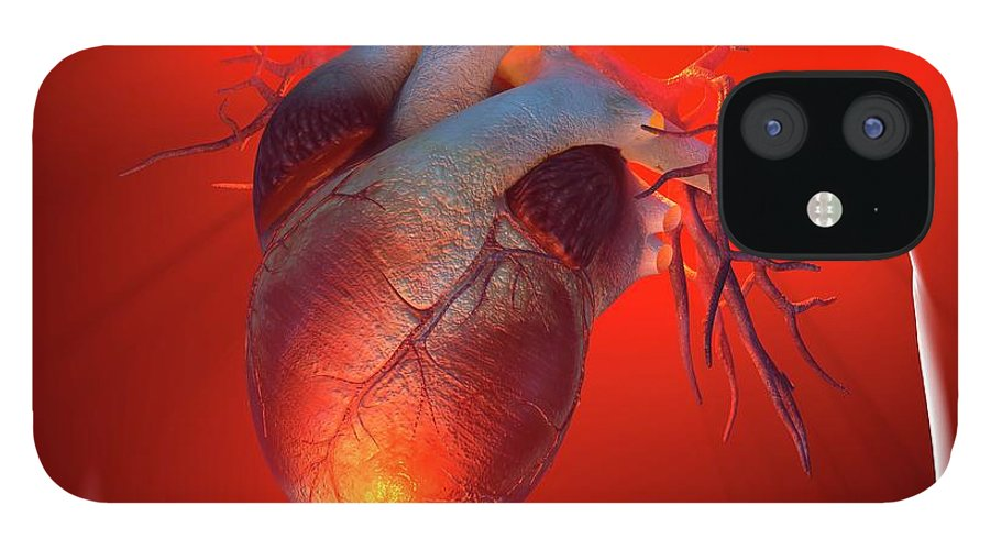 Event iPhone 12 Case featuring the digital art Heart Attack, Conceptual Artwork by Science Photo Library - Roger Harris