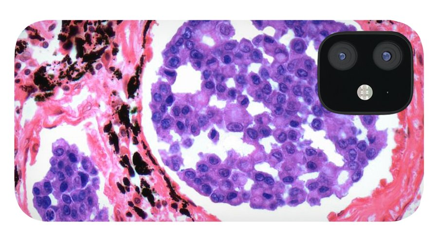 Metastasis IPhone 12 Case featuring the digital art Secondary Lung Cancer, Light Micrograph by Steve Gschmeissner