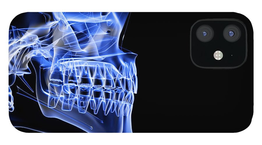 Anatomy IPhone 12 Case featuring the digital art The Bones Of The Jaw by Medicalrf.com