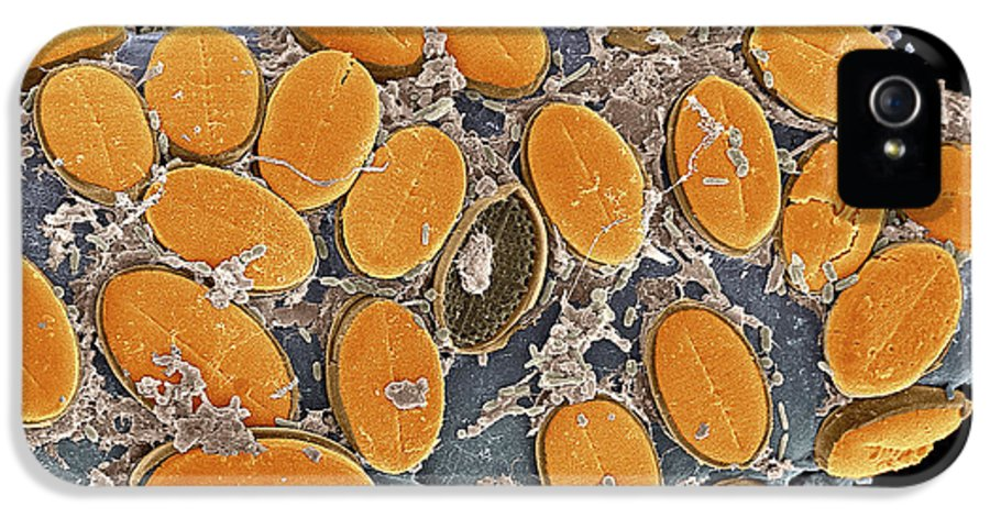 Coloured IPhone 5 / 5s Case featuring the photograph Diatom Algae, Sem by Steve Gschmeissner