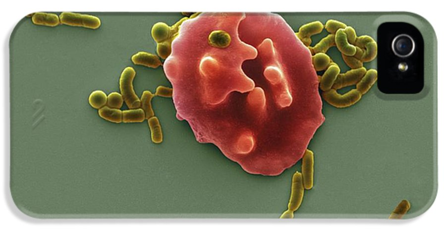 Abnormal IPhone 5 Case featuring the photograph Red Blood Cell And Bacteria, Sem by Steve Gschmeissner