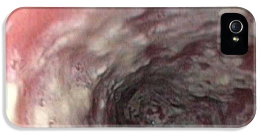 Endoscope View IPhone 5 Case featuring the photograph Thrush In The Oesophagus by Gastrolab