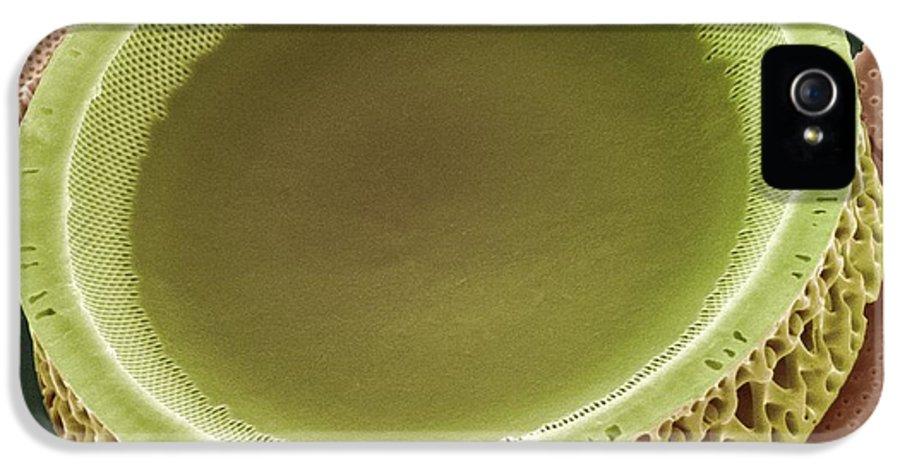 Alga IPhone 5 Case featuring the photograph Diatom, Sem by Steve Gschmeissner