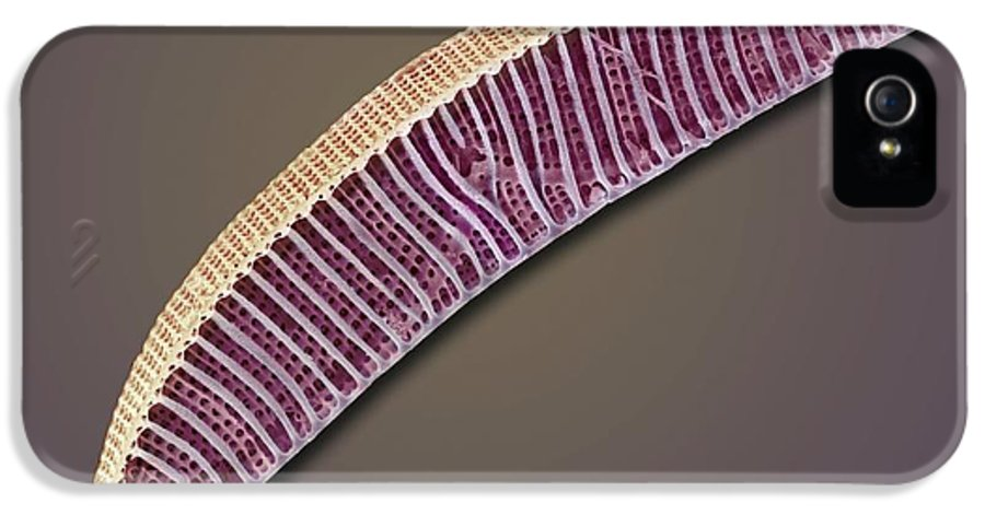 Cymbella Sp. IPhone 5 Case featuring the photograph Diatom, Sem by Steve Gschmeissner