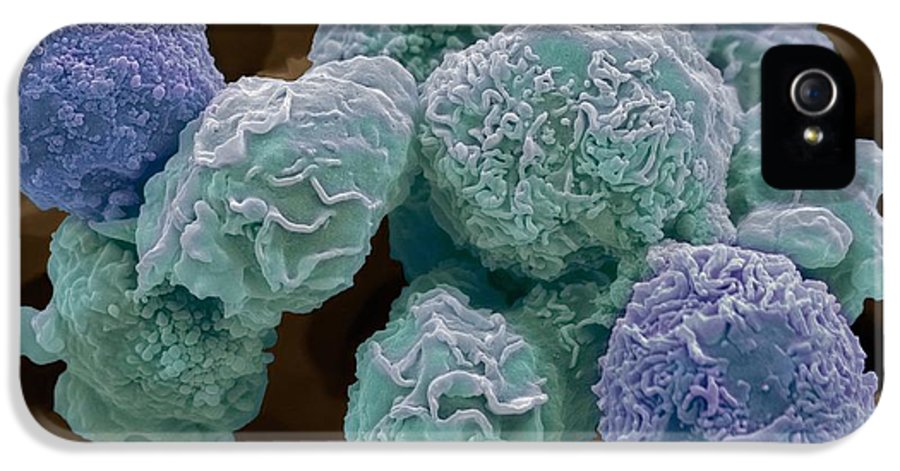 Abnormal IPhone 5 Case featuring the photograph Cervical Cancer Cells, Sem by Steve Gschmeissner