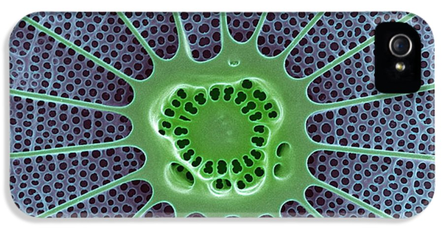 Arachnoidiscus Sp. IPhone 5 Case featuring the photograph Diatom, Sem by Steve Gschmeissner
