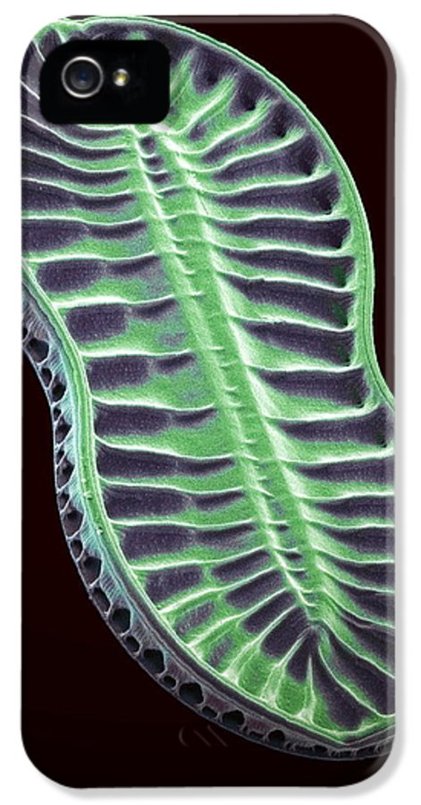 Navicula Didyma IPhone 5 Case featuring the photograph Diatom, Sem by Steve Gschmeissner