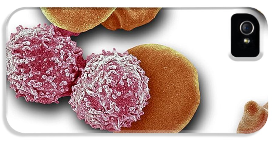 Abnormal IPhone 5 Case featuring the photograph Leukaemia Blood Cells, Sem by Steve Gschmeissner