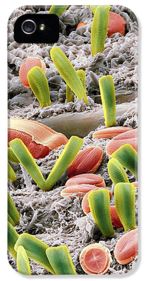Alga IPhone 5 Case featuring the photograph Diatoms, Sem by Steve Gschmeissner