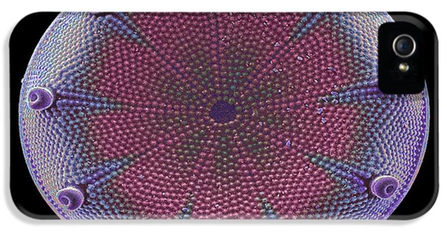 Diatom IPhone 5 Case featuring the photograph Diatom Alga, Sem by Steve Gschmeissner