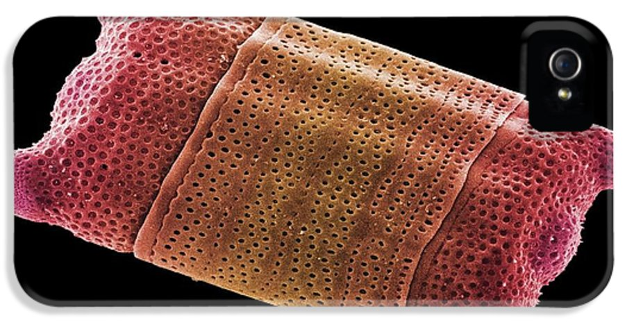 Diatom IPhone 5 Case featuring the photograph Diatom Alga, Sem by Steve Gschmeissner