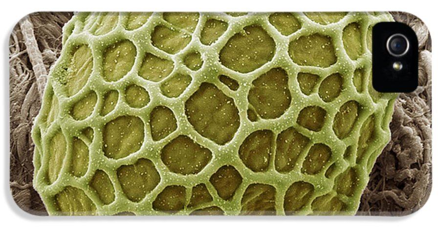 Alga IPhone 5 Case featuring the photograph Freshwater Alga, Sem by Steve Gschmeissner