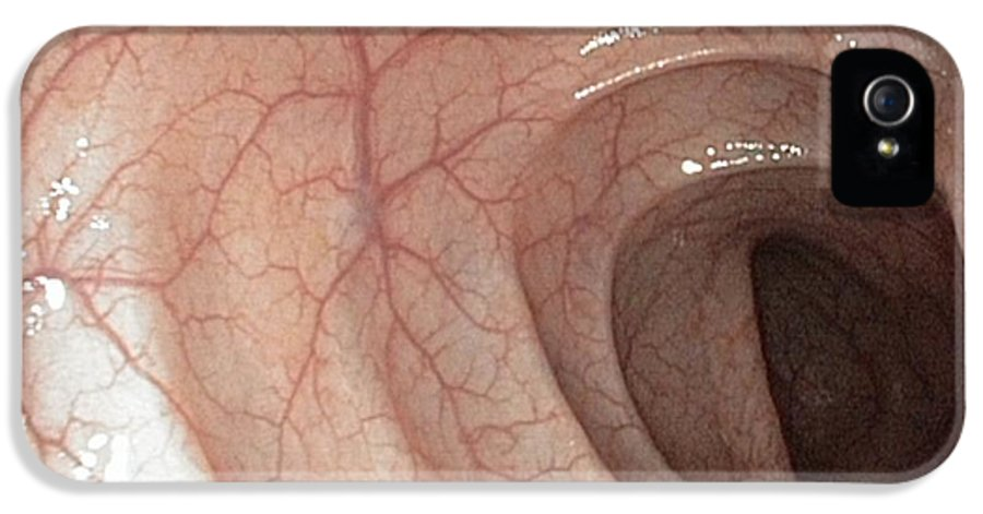 Sigmoid Colon IPhone 5 Case featuring the photograph Healthy Colon, Large Intestine by Gastrolab