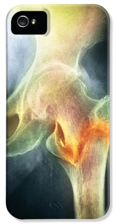 Osteoporosis IPhone 5 Case featuring the photograph Coloured X-ray Of Femur Fracture In Osteoporosis by Medical Photo Nhs Lothian