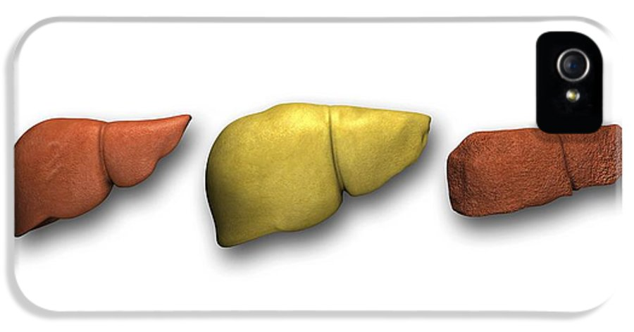 Cirrhosis IPhone 5 Case featuring the photograph Liver: Normal, Fatty, Cirrhotic by Pasieka