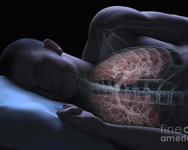 Transparency Poster featuring the photograph Sleep Apnea by Science Picture Co