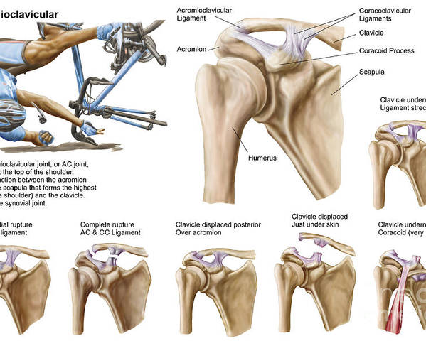 Anatomy Of Acromioclavicular Joint Poster by Stocktrek Images