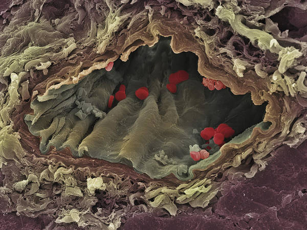 Artery Poster featuring the photograph Artery Sem by Steve Gschmeissner