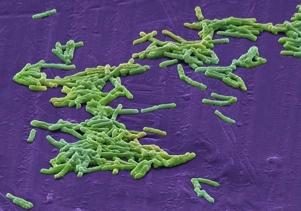 Clostridium Difficile Poster featuring the photograph Clostridium Difficile Bacteria, Sem by David Mccarthy