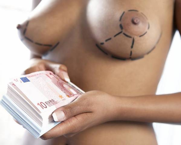 Euro Poster featuring the photograph Cosmetic Breast Surgery by Adam Gault