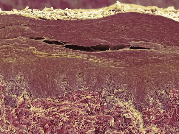 Layers Poster featuring the photograph Skin Layers, Sem by Steve Gschmeissner