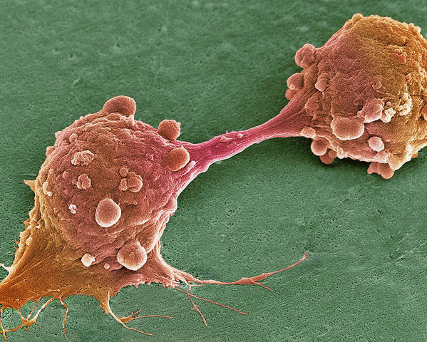Cell Poster featuring the photograph Cancer Cell Dividing, Sem by Steve Gschmeissner