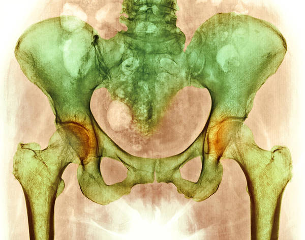 Hip Joint Osteoarthritis Poster featuring the photograph Osteoarthritis Of Hip Joints, X-ray by