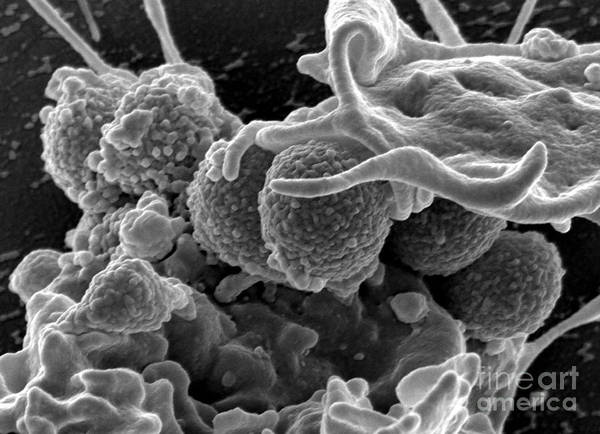 Microbiology Poster featuring the photograph Methicillin-resistant Staphylococcus by Science Source