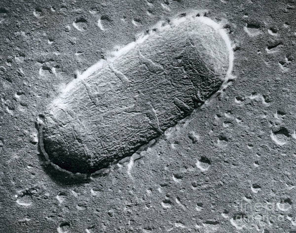 Scanning Electron Micrograph Poster featuring the photograph Tuberculosis Bacillum by Science Source