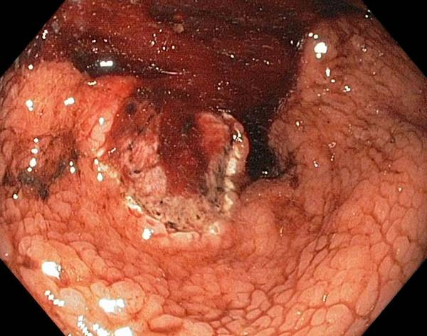 Endoscope View Poster featuring the photograph Bleeding Stomach Ulcer With Cancer by Gastrolab