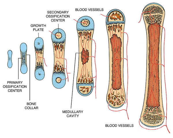 Science Poster featuring the photograph Bone Growth by Science Source
