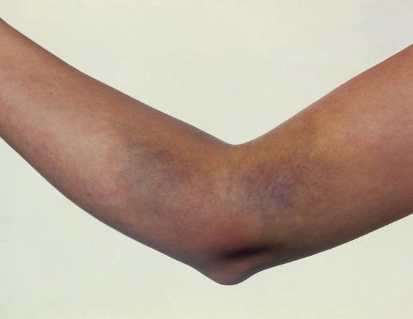 Bruise Poster featuring the photograph Bruising On Woman's Arm After Blood Test by David Parker