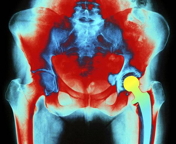 Hip Replacement Poster featuring the photograph Coloured X-ray Of An Artificial Hip Joint by Mehau Kulyk