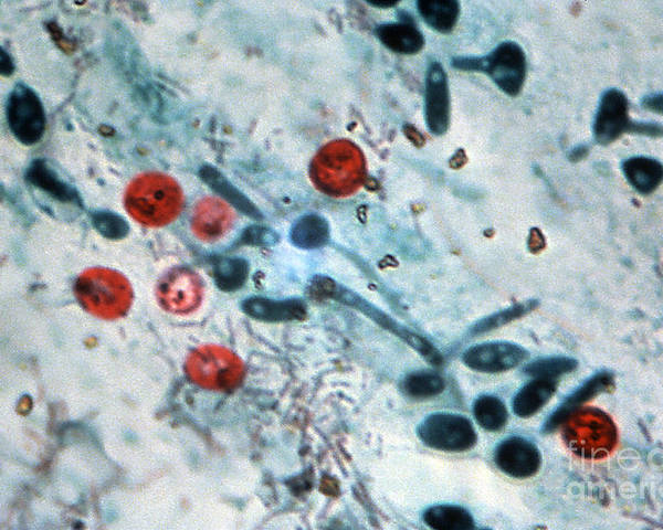 Light Micrograph Poster featuring the photograph Cryptosporidium Oocysts Lm by Science Source