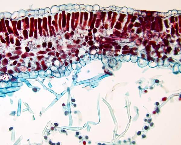 Light Micrograph Poster featuring the photograph Downy Mildew Infection, Light Micrograph by Dr Keith Wheeler