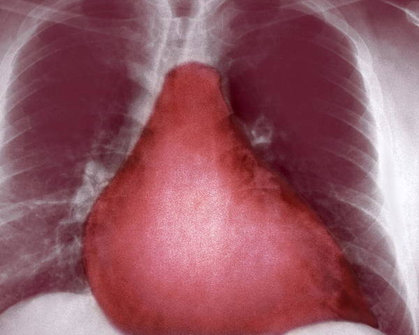 Cardiomegaly Poster featuring the photograph Enlarged Heart, X-ray by Cnri